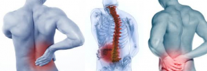 How to treat a back Spasm